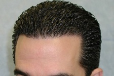 HAIR TRANSPLANT IN IRAN